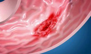Язва пищевода: симптомы, диета, лечение медикаментами и народными средствами