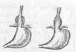 Грыжа пищеводного отдела диафрагмы